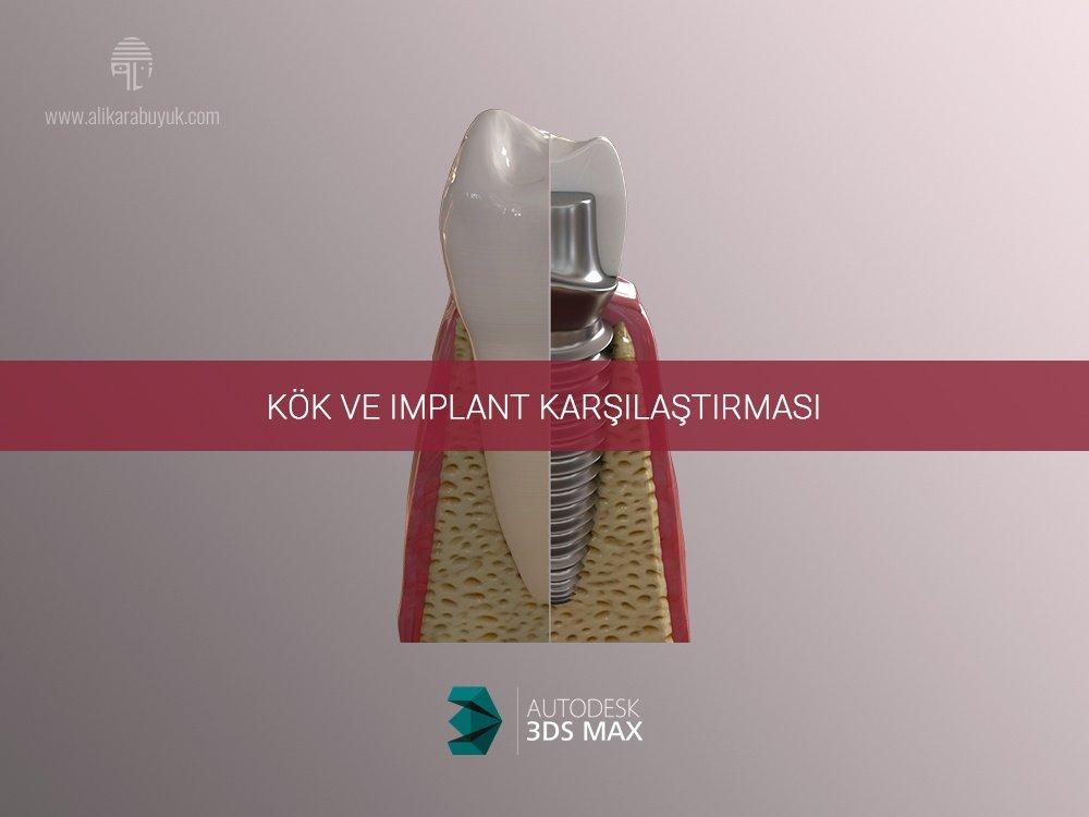 3D Implant ve Diş Karşılaştırması