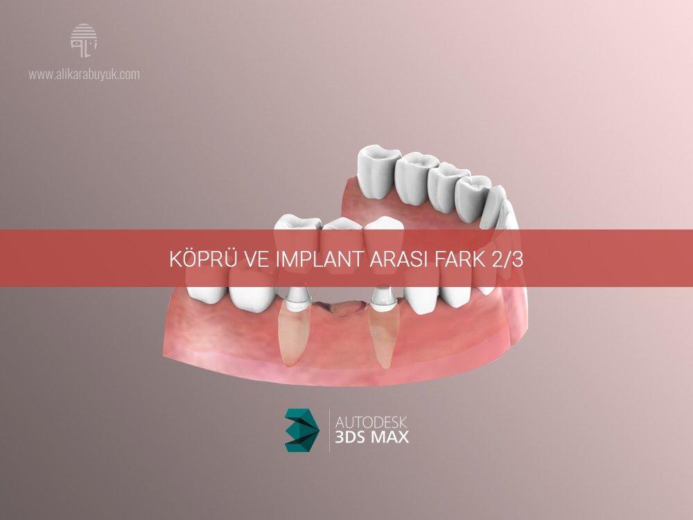3D Implant ve Köprü Karşılaştırması